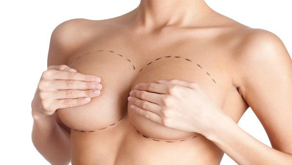mammoplastika